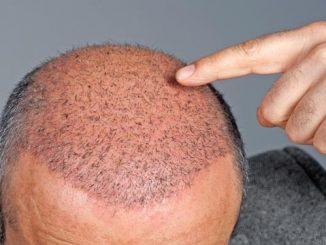 saç ekimi, saç ekim teknikleri, saç ekimi yöntemi