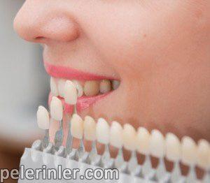 Zirkonyum diş kaplama, Zirkonyum diş fiyatları, diş kaplama yöntemlerin