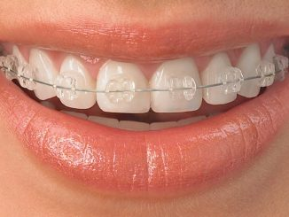 ortodonti tedavisi nasıl yapılır, ortodonti nedir, ortodontinin ilgi alanı