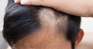 saç ektirmenin faydaları, saç ekimi faydası, saç ekim ücretleri