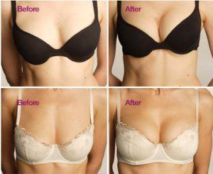 göğüs estetiği süresi, göğüs estetiği yaptırma, göğüs estetiği yaptırma süreci