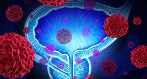 Prostat kanseri belirtileri , Prostat kanseri tedavisi, Prostat kanseri nasıl tedavi edilir