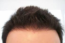 estetik operasyonlardaki gelişmeler, saç ekimi, saç ekimindeki gelişmeler