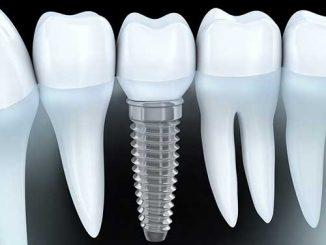 implant tedavisi, İmplant İstanbul, istanbul implant tedavisi