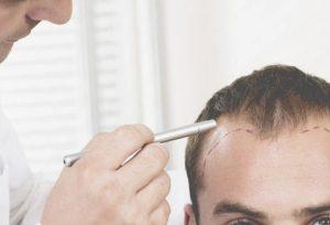 saç dökülmesi, saç dökülmesi sorunu, saç neden dökülür