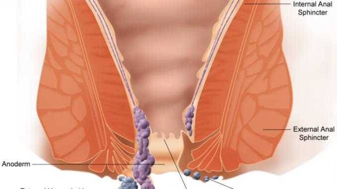 gebelik hemoroid sorunu, gebelikte hemoroid tedavisi yapımı