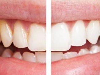 diş beyazlatma, diş beyazlatma yöntemleri, diş nasıl beyazlatılır
