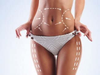 liposuction merkezi, liposuction işlemi, liposuction yapımı