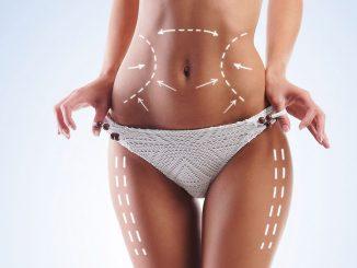 liposuction merkezi, liposuction işlemi, liposuction yapımı
