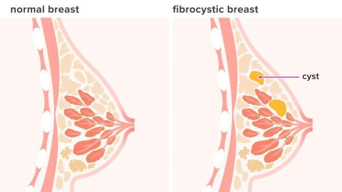 fibrokistik meme rahatsızlığı, fibrokistik meme sorunları, fibrokistik meme hastalığı tedavisi
