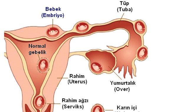 dış gebelik, dış gebelik oluşumu, dış gebelik nedenleri